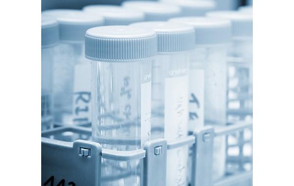 Convenzione-esame-chitotriosidasi-in-scadenza