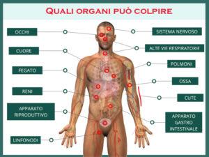 Organi Colpiti dalla Sarcoidosi