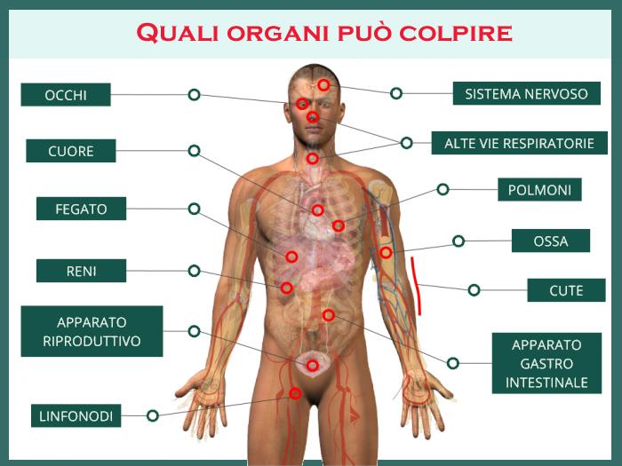 Malattia infiammatoria pelvica (MIP)